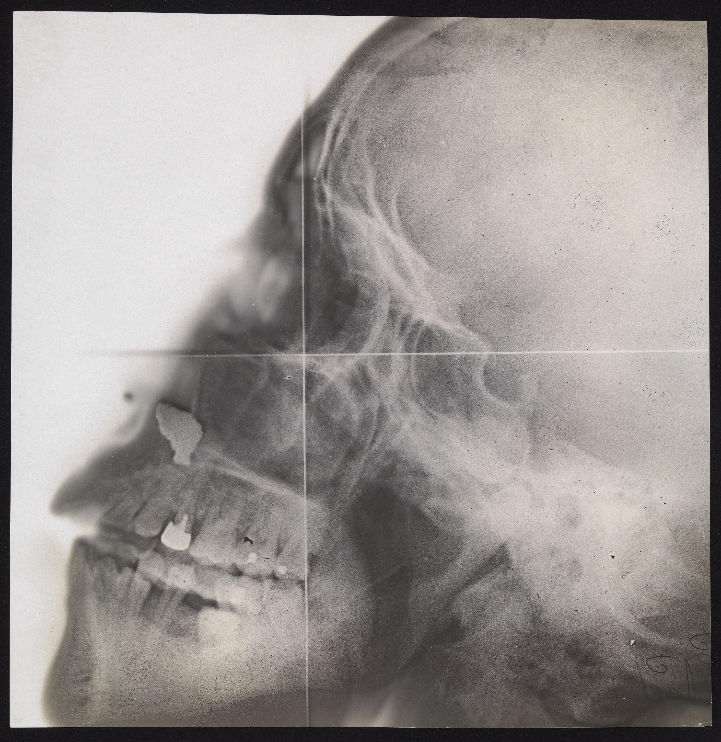 x ray of a skull in profile